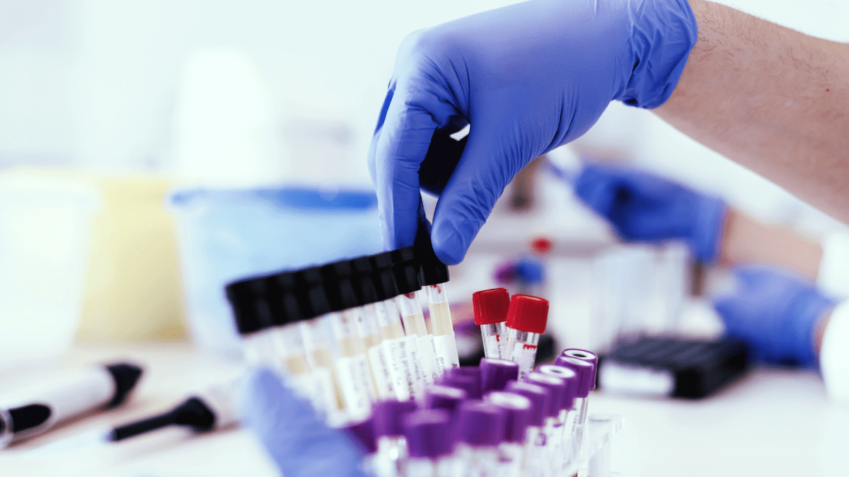 3 Steps to Optimizing Clinical Laboratory Cost Savings and Transforming Patient Care